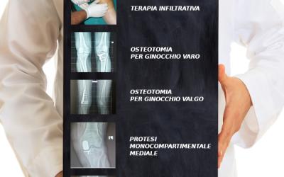 Patologia artrosica del ginocchio: per ogni paziente un menu alla carta